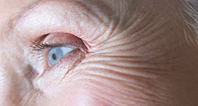 Aging of the Skin